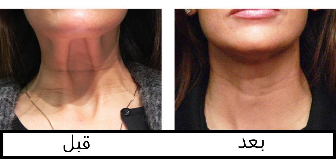قبل و بعد تزریق بوتاکس