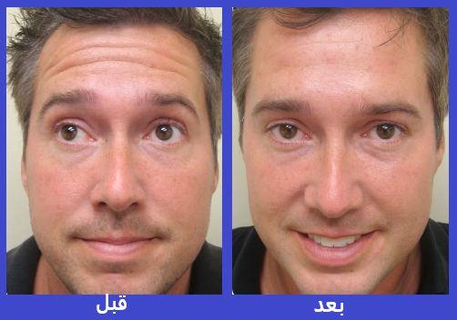 بوتاکس پیشانی قبل و بعد