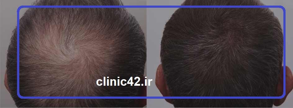 قبل و بعد از درمان پی ار پی