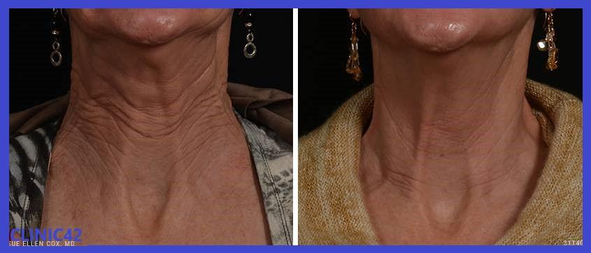 قبل و بعد تزریق بوتاکس ناحیه گردن