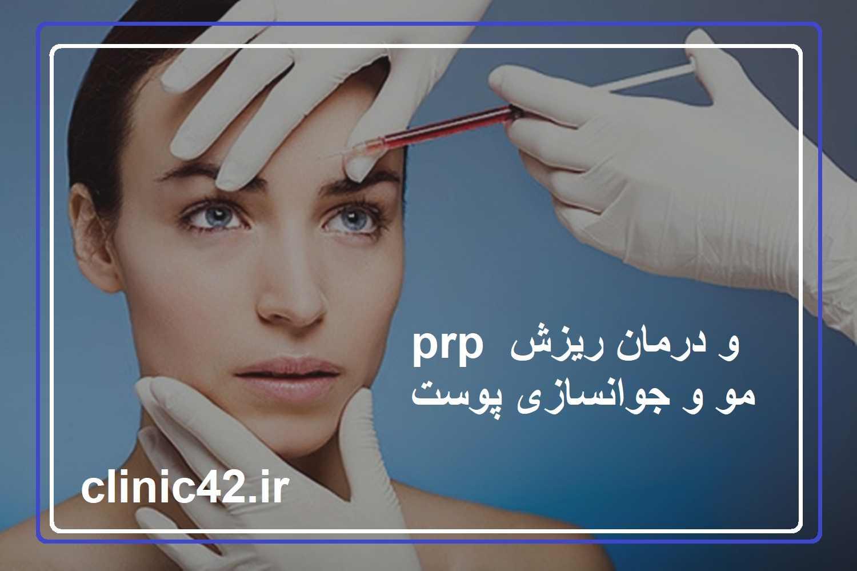 prp و درمان ریزش مو