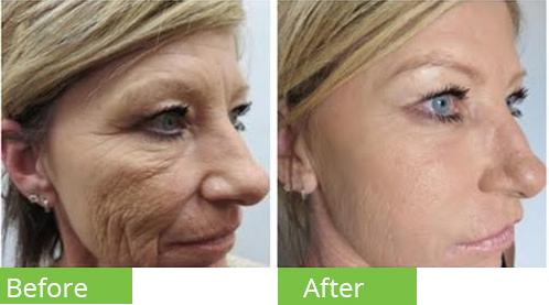 تزریق prp صورت قبل بعد