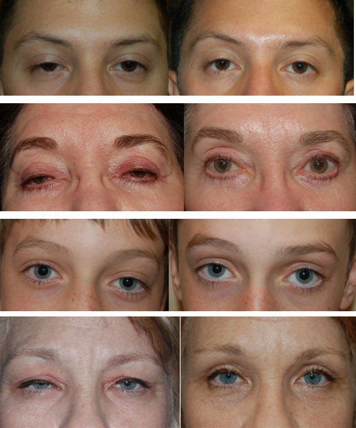 درمان افتادگی پلک عکس قبل و بعد از عمل