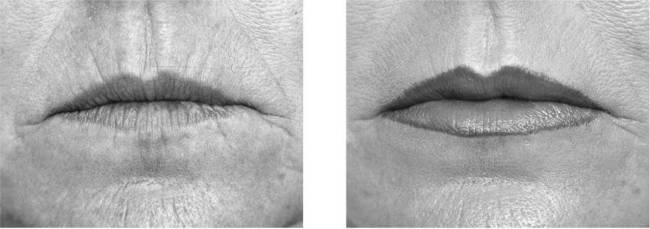 چروک دور لب رفع و درمان قبل وبعد