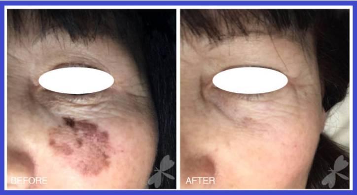 خال برداری با لیزر عکس قبل و بعد