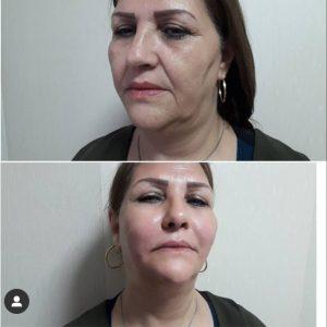 لیفت با نخ و تزریقژل افتادگی پوست بدون جراحی