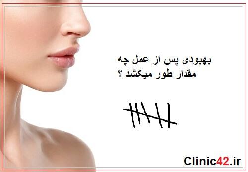 بهبودی پس از عمل جراحی بینی چقدر طول میکشد ؟