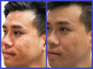 درمان جای جوش صورت با روش طبیعی و غیر طبیعی