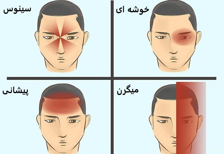 ناحیه های سردرد در صورت و نام آن ها