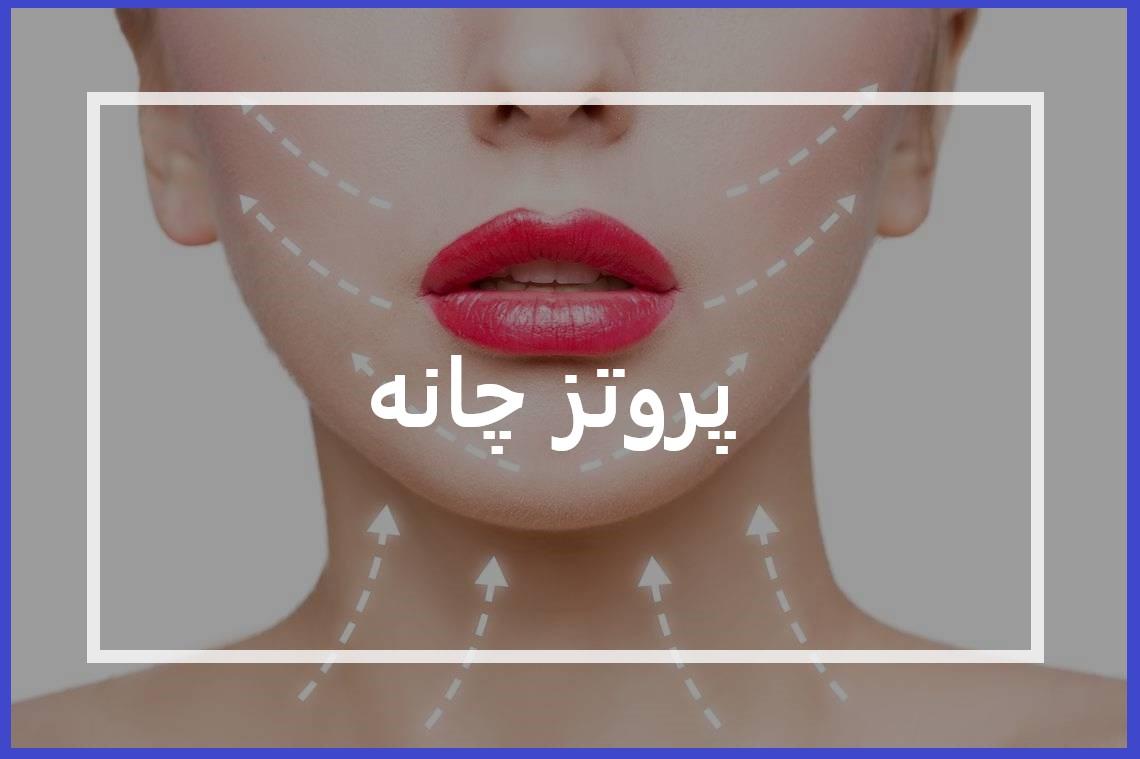 پروتز چانه کلینیک زیبایی تهران پروتز