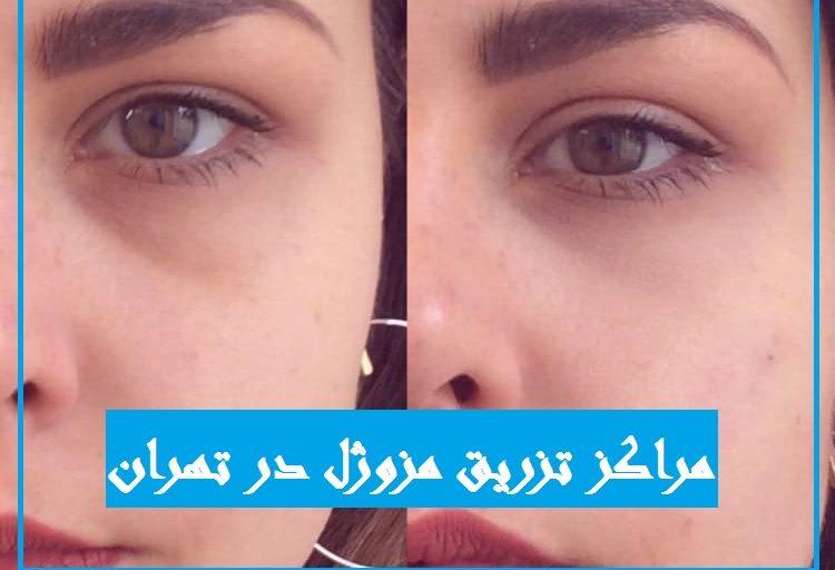 مراکز و دکتر تزریق مزوژل در تهران