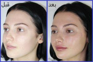 درمان لاغری صورت و گونه با تزریق ژل
