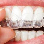 بلیچینگ خانگی بیمار در حال جایگذاری بلیچینگ روی دندان