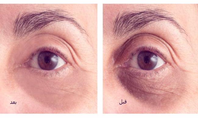 کربوکسی تراپی چشم