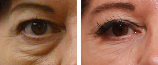 قبل وبعد از کروبکسی تراپی زیر چشم