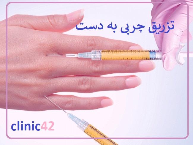 تزریق چربی به دست