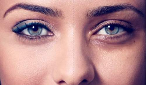 قبل و بعد از درمان پوست زیر چشم