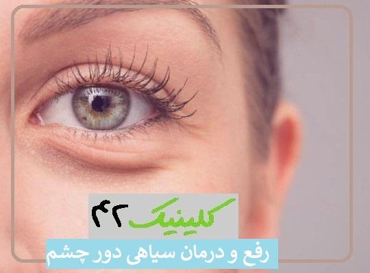رفع و درمان سیاهی دور چشم