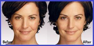 عکس قبل و بعد از تزریق ژل