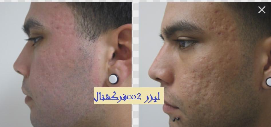 عکس لیزر فراکشنال تهران لیزر co2 فرکشنال برای جای جوش و لک