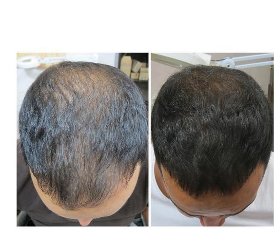 prp درمان ریزش مو