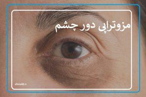 مزوتراپی دور چشم