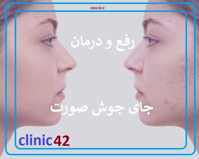 رفع و درمان جای جوش صورت