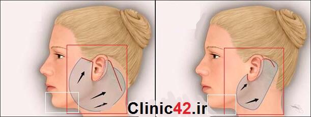 درمان غبغب گردن با لیفت