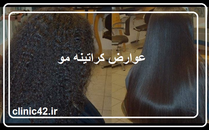 عوارض کراتینه مو