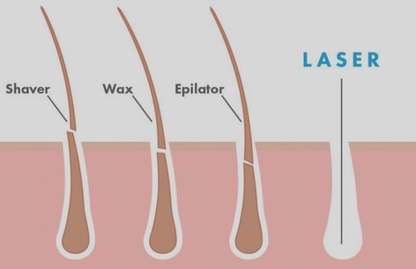 لیزر نیاوران کلینیک پوست و مو