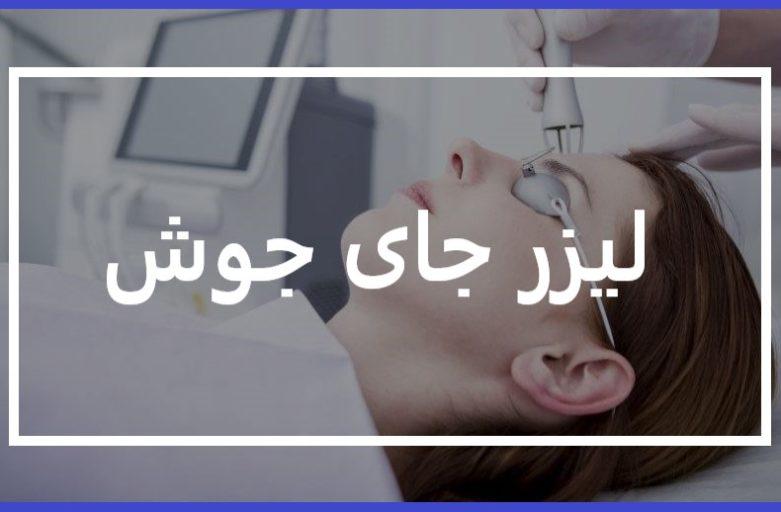 لیزر جای جوش