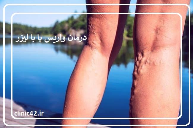 درمان واریس پا با لیزر