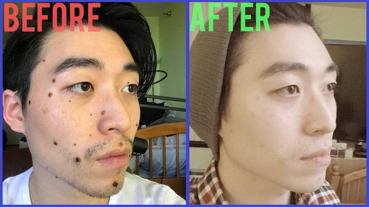 عکس قبل و بعد خال برداری با لیزر