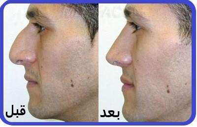 درمان و رفع قوز بینی با تزریق ژل
