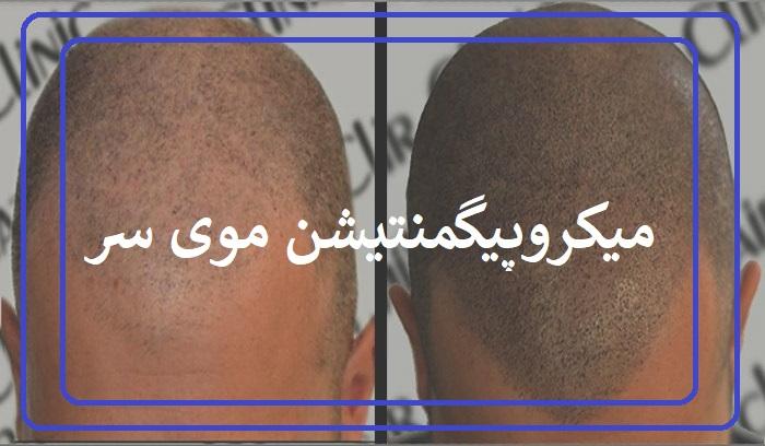 میکروپیگمنتیشن موی سر