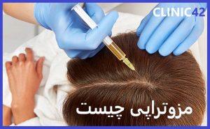 مزوتراپی مو در مقایسه با روش های دیگر