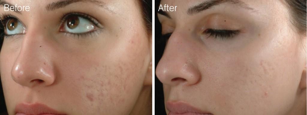 میکرونیدلینگ و جوانسازی پوست