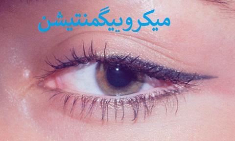 میکروپیگمنتیشن خط چشم