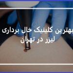 کلینیک خال برداری با لیزر در تهران
