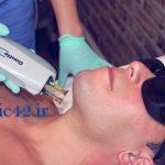 درد لیزر موهای زائد بدن