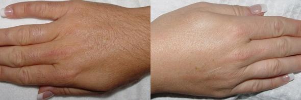 قبل و بعد از لیزر دایود