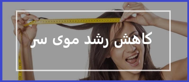 کاهش رشد موی سر