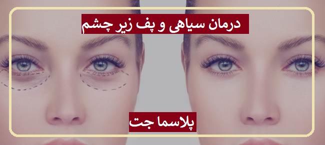 درمان سیاهی زیر چشم با پلاسما جت در تهران