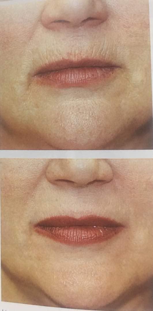 تزریق بوتاکس قبل و بعد از تاثیر گذاری