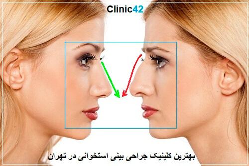 بهترین کلینیک جراحی بینی استخوانی در تهران