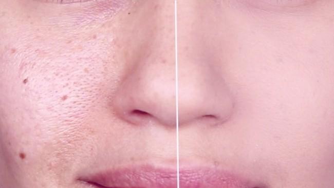لیزر پوست پرتقالی برای بسته شدن منافذ پوست