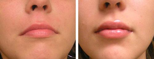 قبل و بعد از تزریق ژل به لب